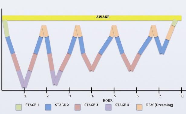 Sleep stage graph